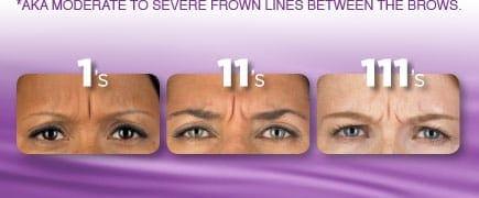 Botox Cosmetic Help