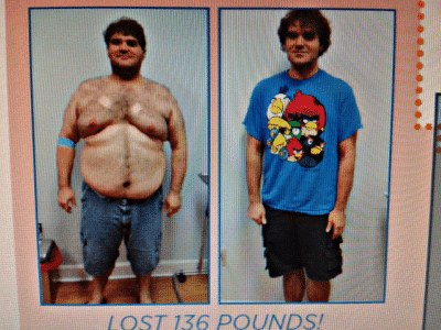 andrew-lost-136-pounds-on-svelte-md-medical-weight-loss-diet