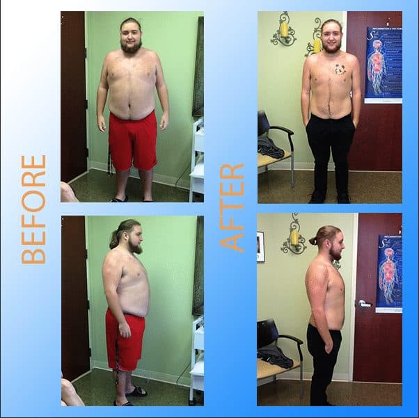 Weight Loss in Orlando Florida - Svelte Medical Weight Loss